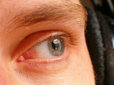 eye-358403_400x300